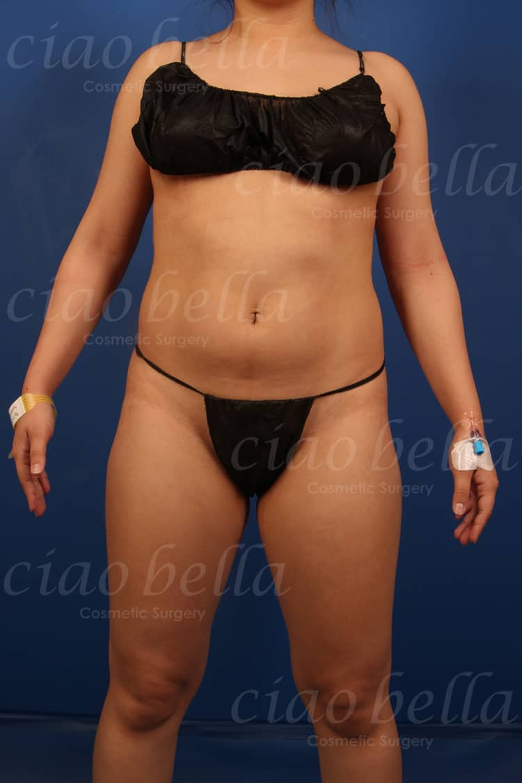 liposuction bodysculpting case#841