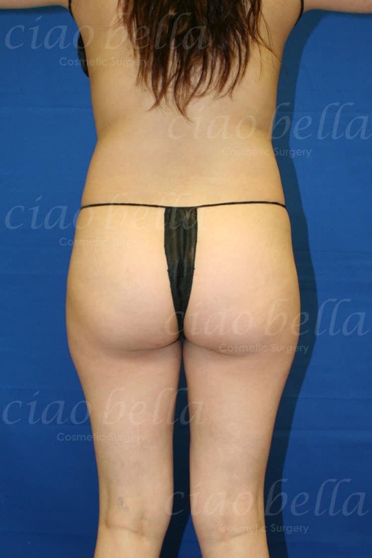 Brazilian Butt Lift Case#2390