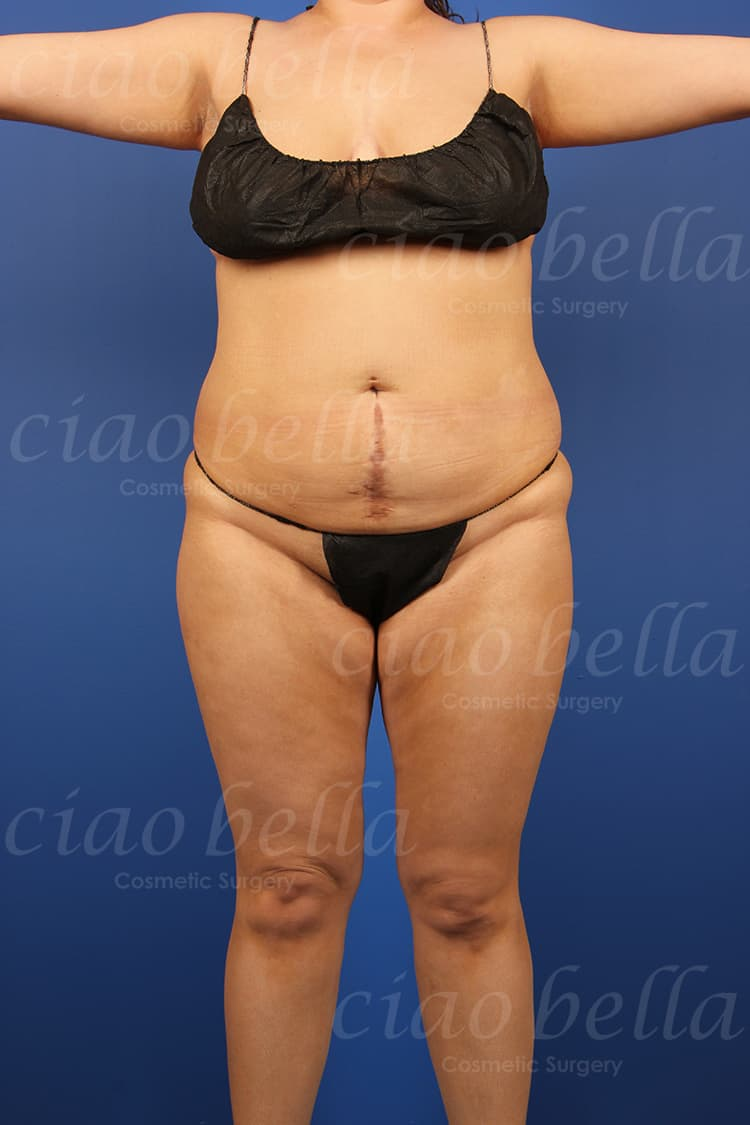 liposuction bodysculpting case#148